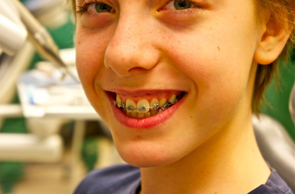 Different Types of Braces and Their Cost