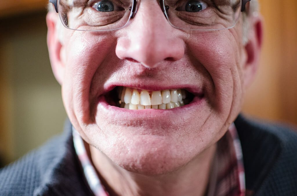 How to Straighten Teeth Without Braces?