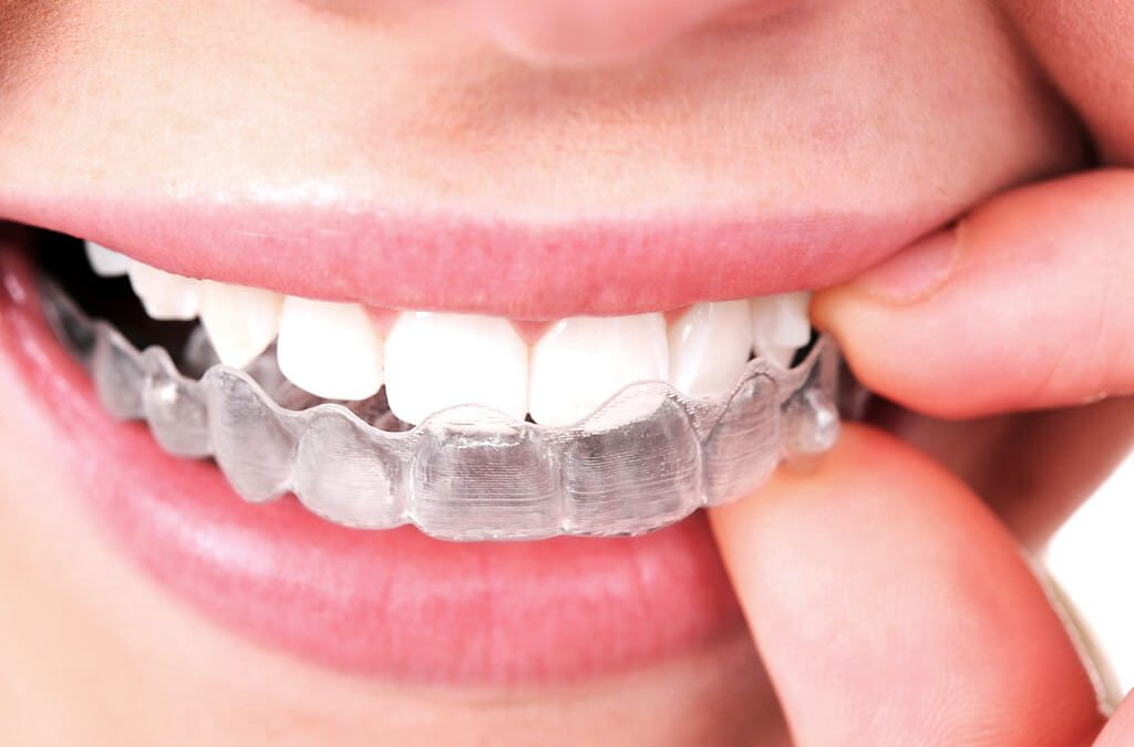Best Ways to Keep Invisalign Braces Clean