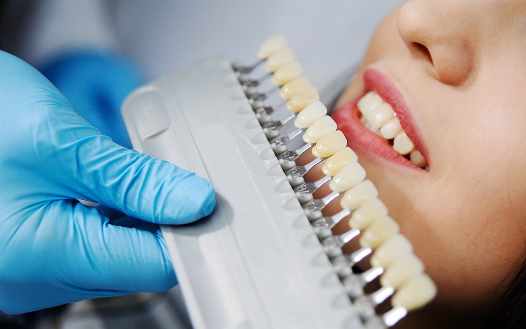 Common Dental Implant Complications