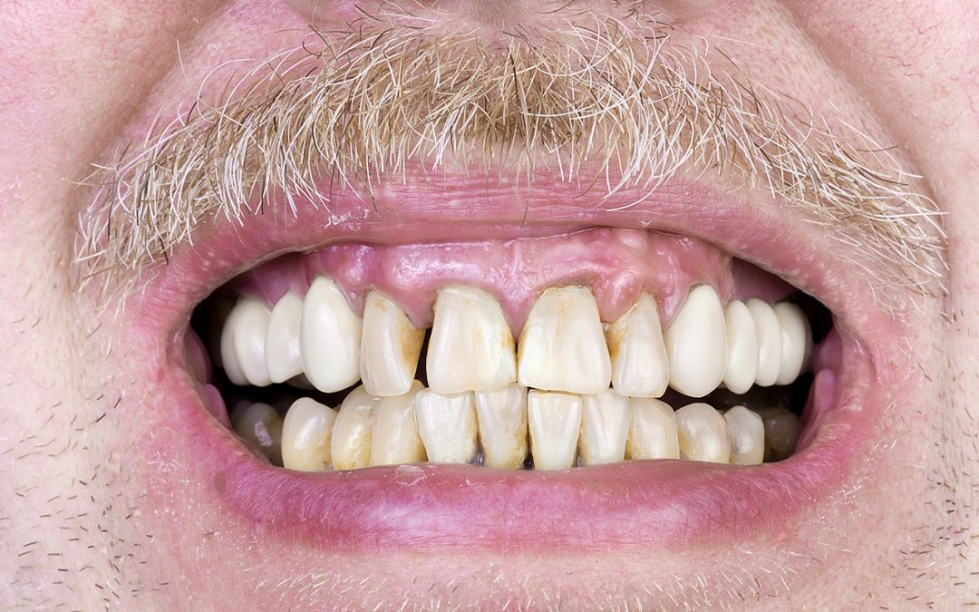 Gingivitis Medical Term For Teeth Early Stage Periodontal Disease