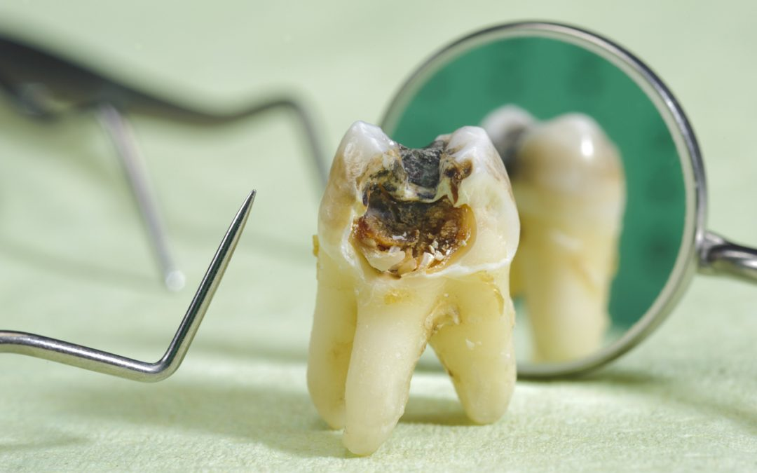Signs And Treatment Of Dead Tooth