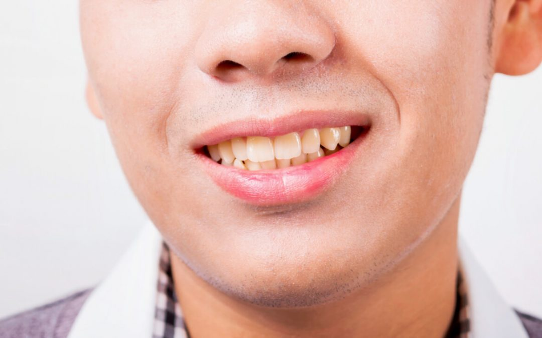 Why some people have naturally yellow teeth