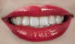 if you have naturally yellow teeth go for a tooth whitening treatment