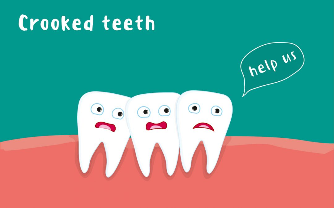How To Fix Crooked Teeth