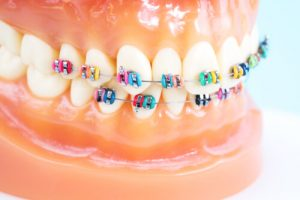 orthodontic benefits of traditional braces