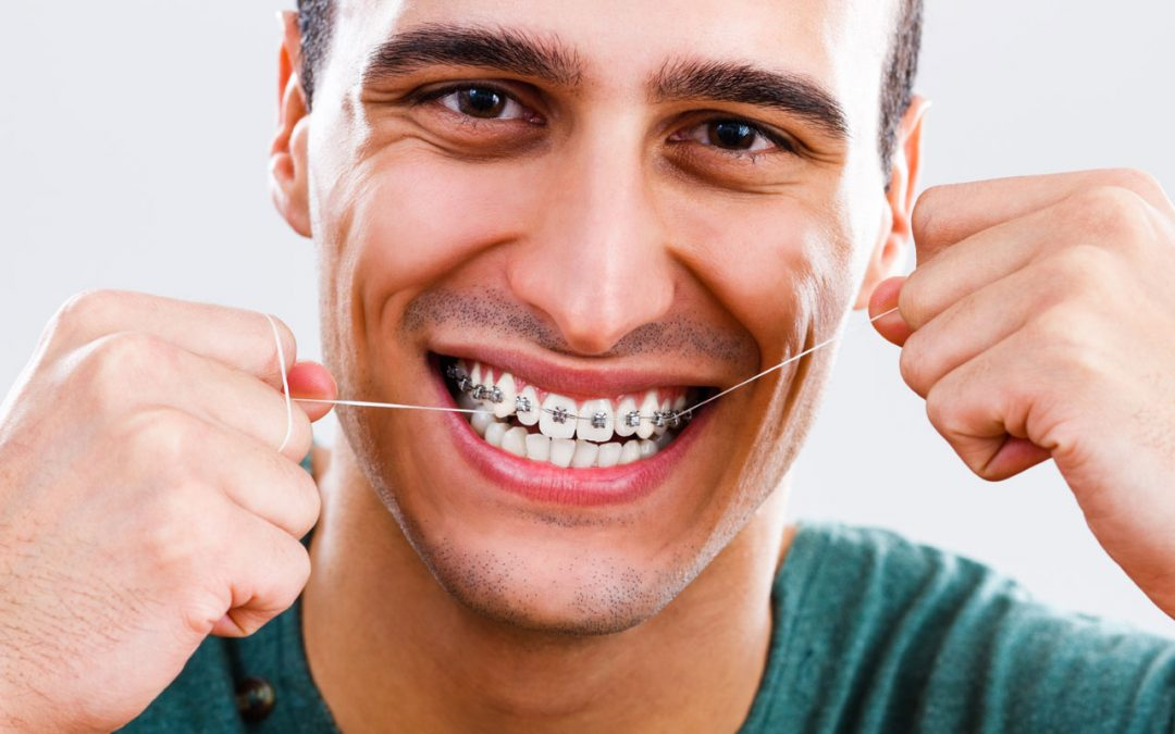 Tricks To Make Flossing With Braces Easier