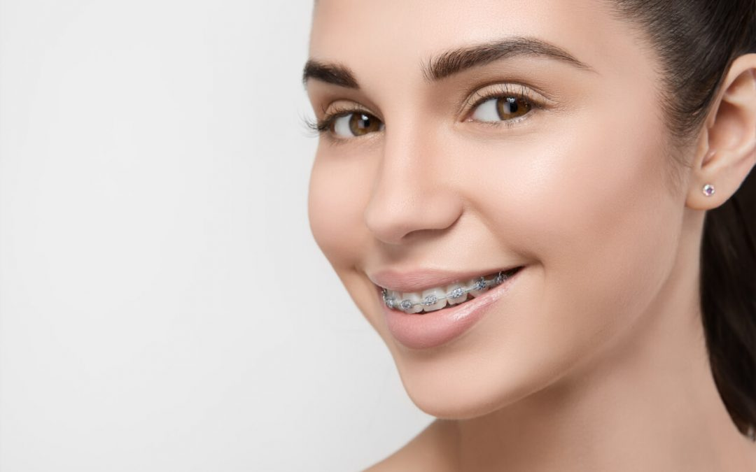 Advantages of Affordable Orthodontic Treatments