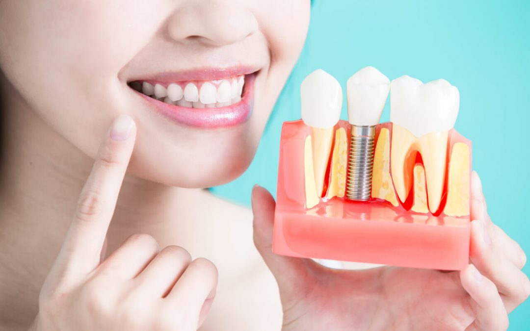 Finding cheap dental implants