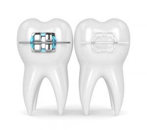 clear braces vs.metal braces