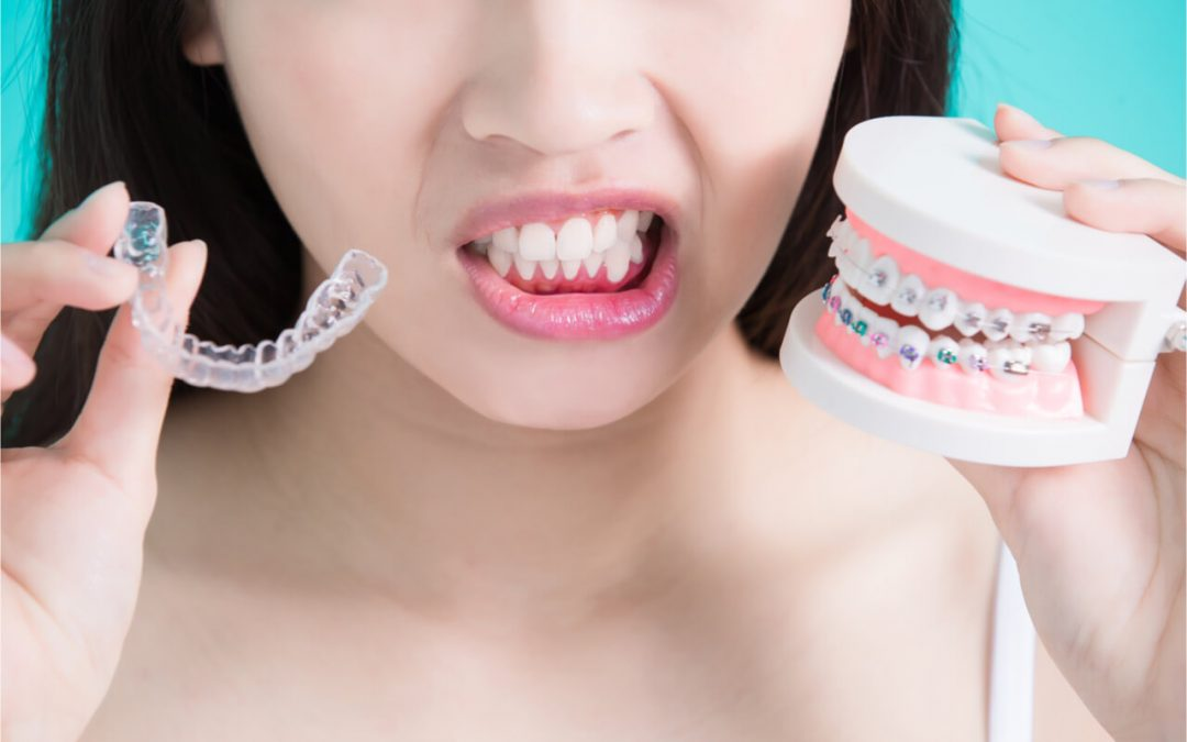 Clear braces vs. Metal braces: What's the difference?