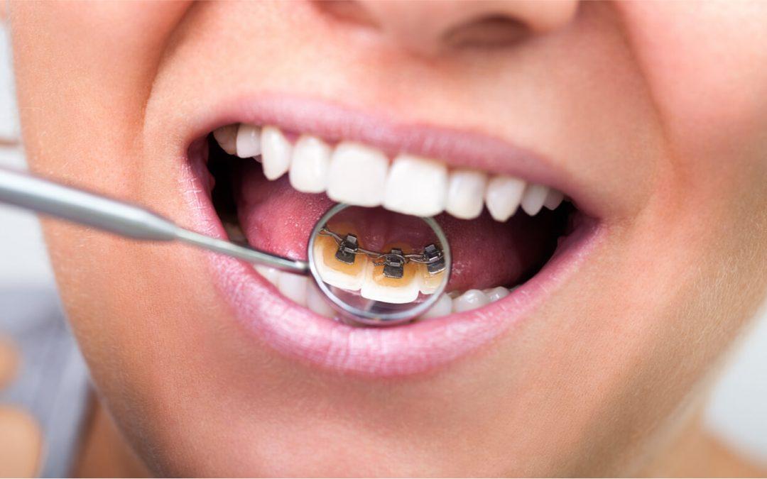 Braces Behind the Teeth
