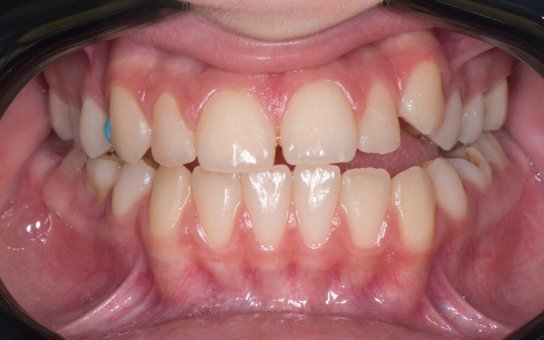 What are the benefits of Open Bite Braces