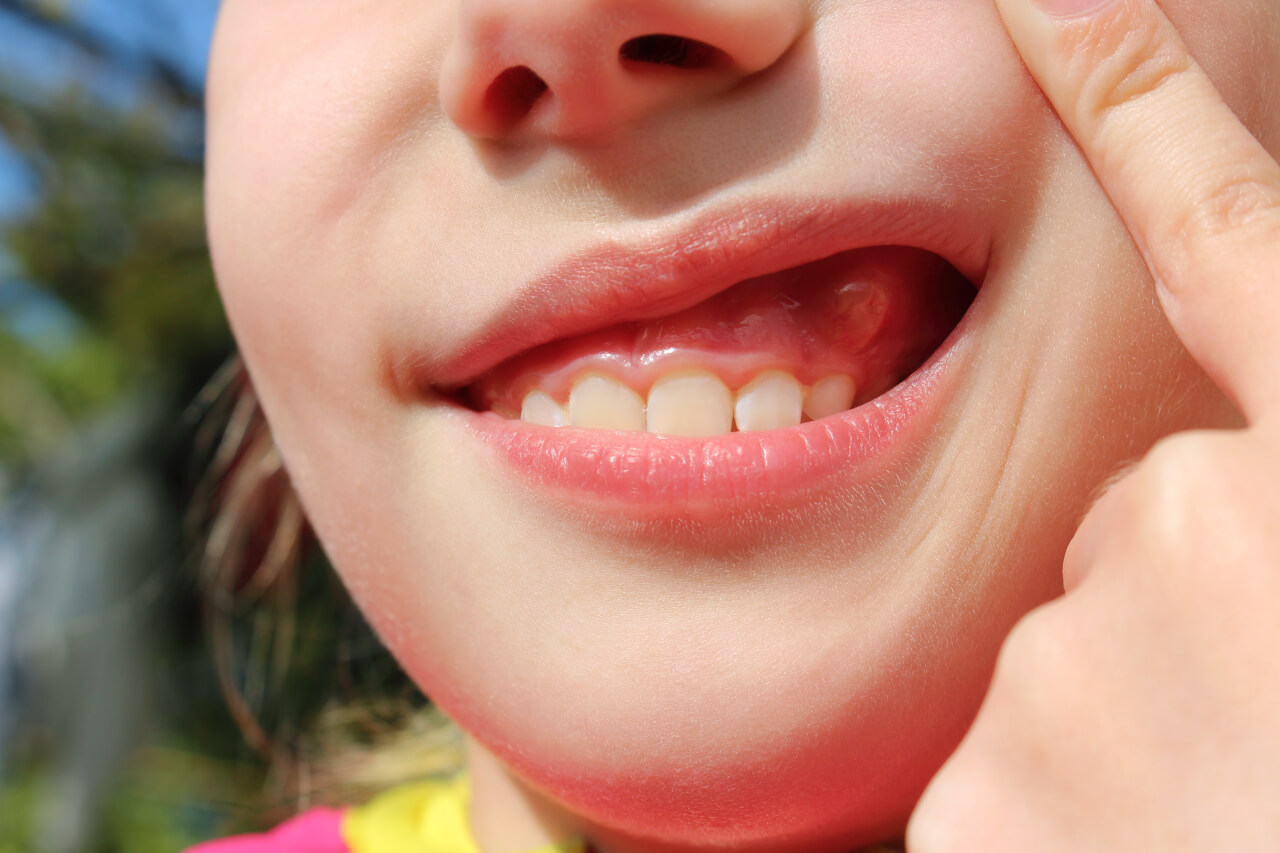 Gum Infections That Cause Pus