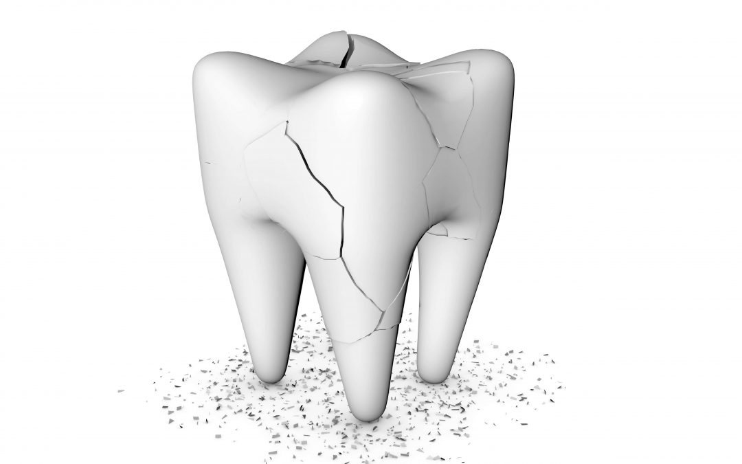 What to do with cracked tooth under the crown of root canal