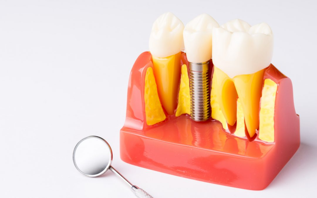 Dental Implant Removal
