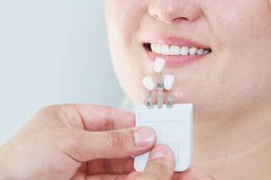 dental veneers from prosthodontist