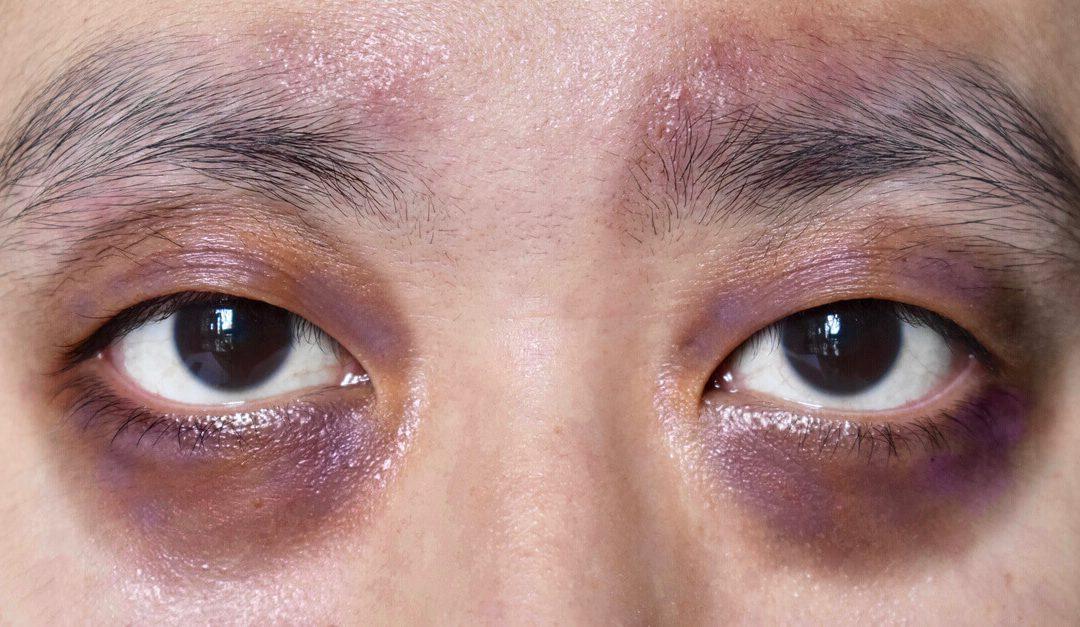 Orbital eye pain: A sign of orbital fracture?