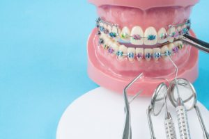 orthodontist appointment
