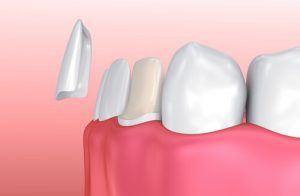 cost of veneers with insurance