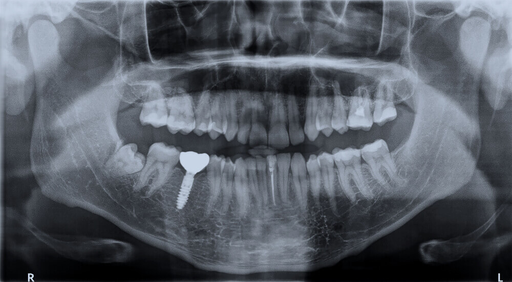 What Implant Is That: Identifying Various Dental Implants of Patients