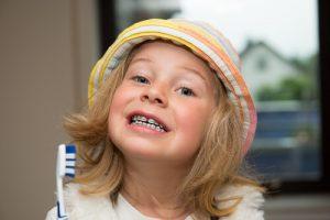 brushing without orthodontic headgear
