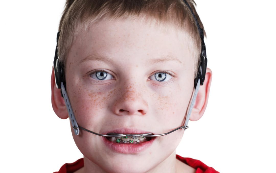 Orthodontic headgear: Do I really need one?