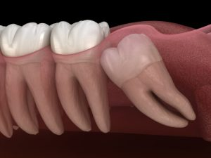 horizontal impacted wisdom teeth