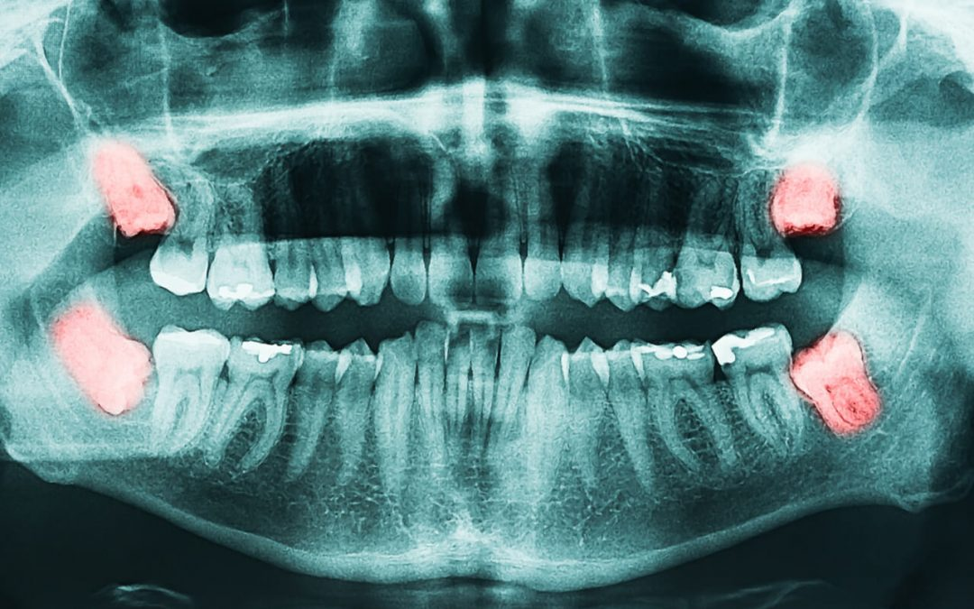 Facts about Horizontal Impacted Wisdom Teeth