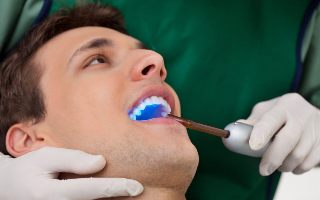 What Are the Dental Sealants Pros and Cons?