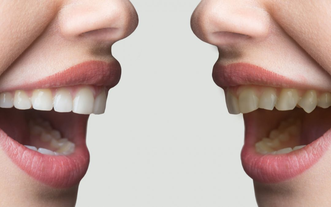 How To Achieve The Perfect Smile [With Perfect Teeth Alignment]
