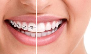 what is orthodontics treatment