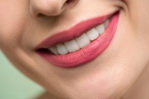 perfect teeth like celebrities