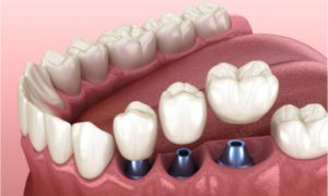three dental crowns