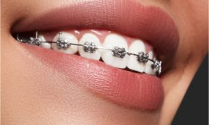 attached braces on teeth
