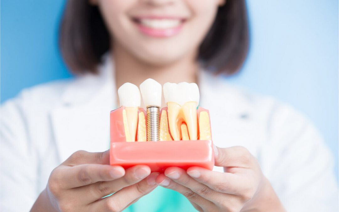 What To Expect After Dental Implant Surgery? You Can Smile Once Again